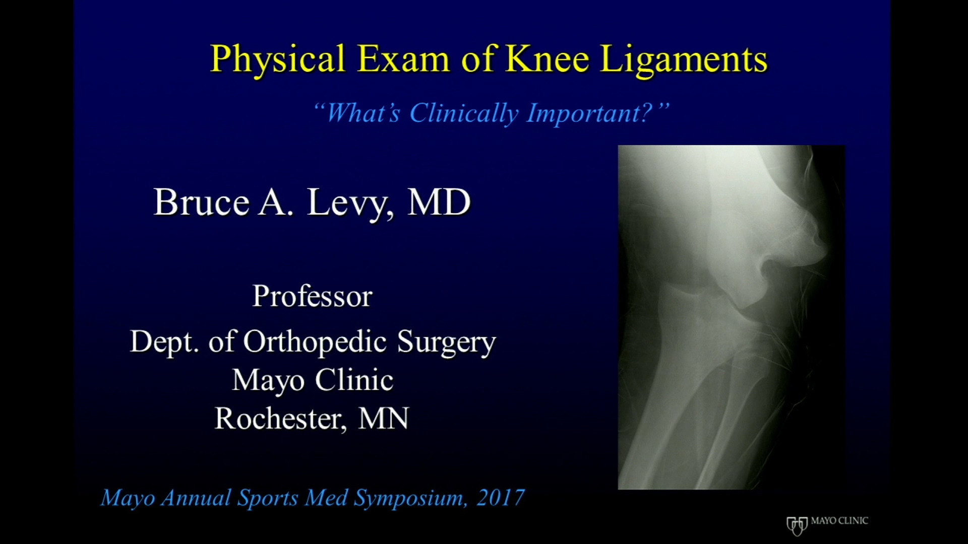 Physical Examination of Knee Ligaments: What's Clinically